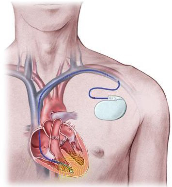 C:\Users\gacon\Desktop\health-enews-ICD-implanted.jpg